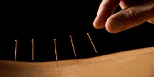 Acupuncture Services Image