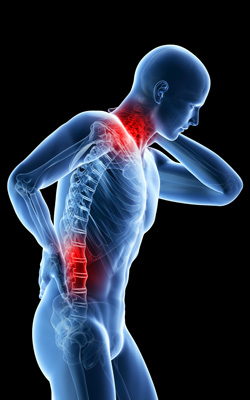 Back and Neck Pain Image