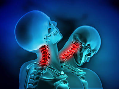 Whiplash Injuries Image